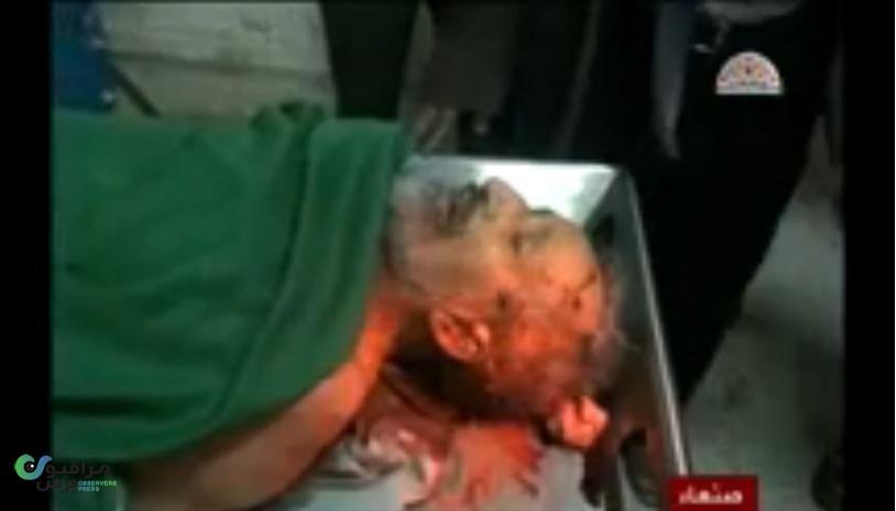 صورة للمتوكل بعد اغتياله من فيديو تقرير لقناة ازال اليمنية